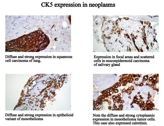 CK7 expression in normal tissues